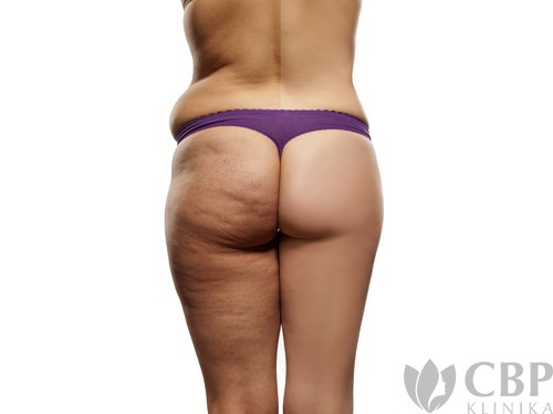 Liposukce nohou a hýždí CBP klinika estetické a plastické chirurgie