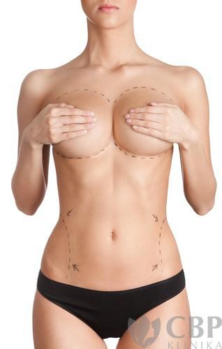 Modelace-prsou-CBP-klinika-estetické-a-plastické-chirurgie