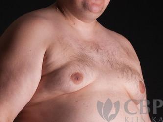 Operace-prsou-u-mužů-CBP-klinika-estetické-a-plastické-chirurgie