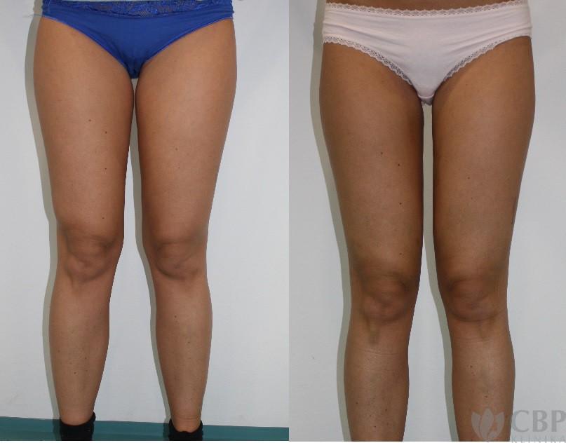 Klientka po liposukci vnitřních stehen a vnitřní částí kolen