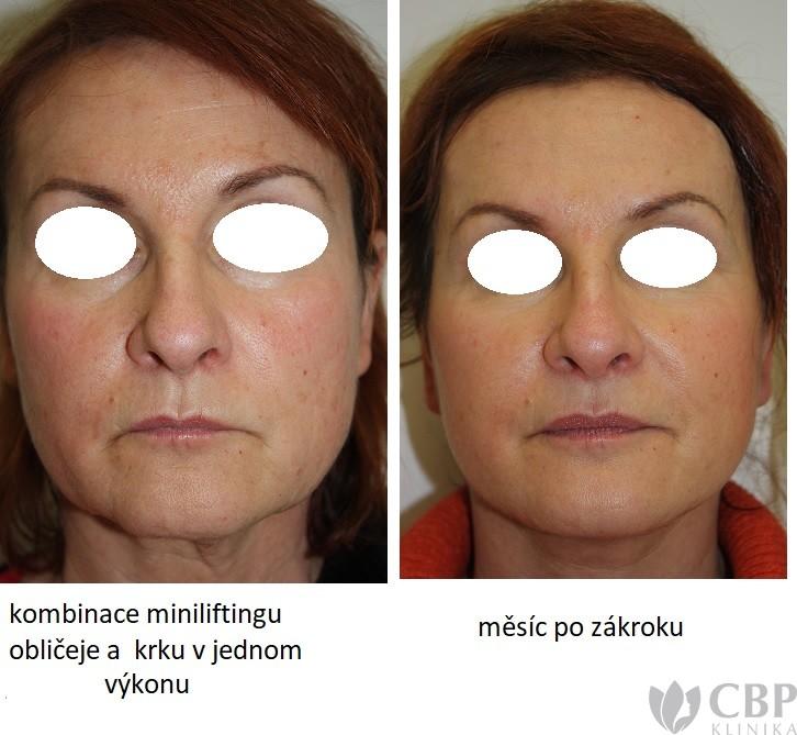 Minilifting obličeje + krku