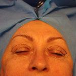 průběh operace horních víček cbp-klinika 2