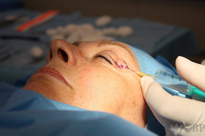 průběh operace horních víček cbp-klinika 3