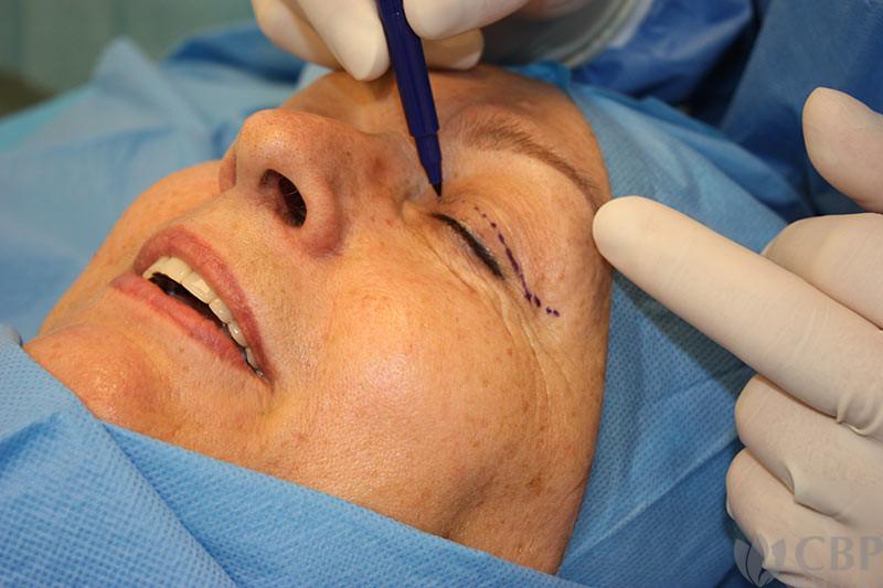 průběh-operace-horních-víček-cbp-klinika